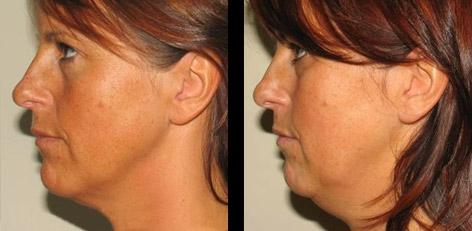 Facelift ohne Operation als eine Innovation in der Kosmetologie